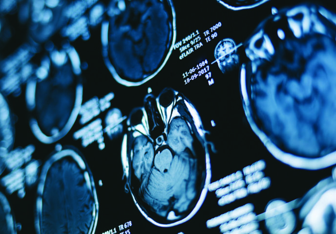 Lung cancer and brain metastases